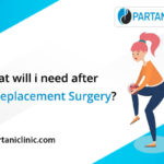 What should one do after knee replacement surgery?