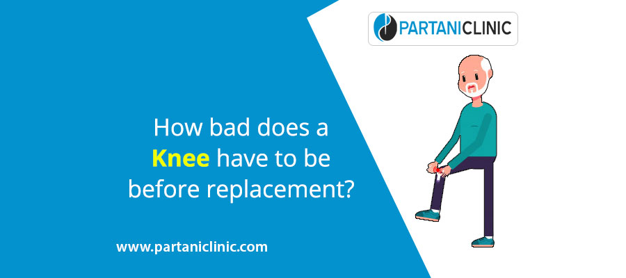How bad does a knee have to be before replacement?