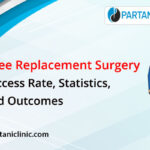 Knee Replacement Surgery Success Rate, Statistics, And Outcomes