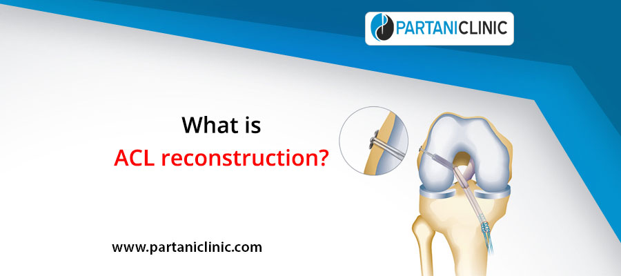 What is ACL reconstruction?