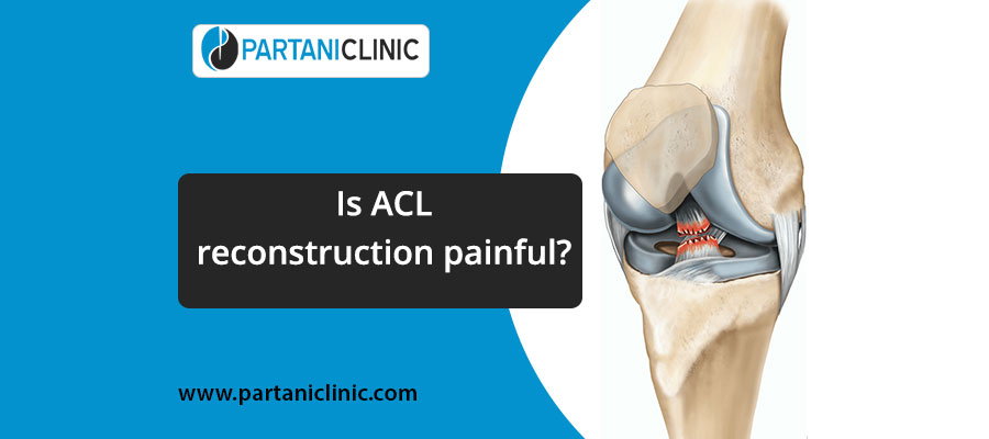 Is ACL Reconstruction Painful?