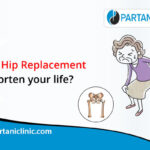 Does Hip Replacement Shorten Your Life?