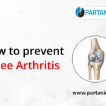 How to prevent knee arthritis?