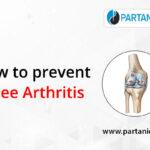 How to prevent knee arthritis?