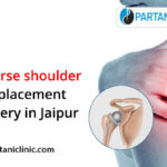 Reverse shoulder replacement surgery in Jaipur.
