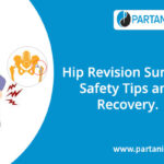 Hip Revision Surgery: Safety Tips and Recovery