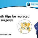 Can both hips replacement in one surgery?