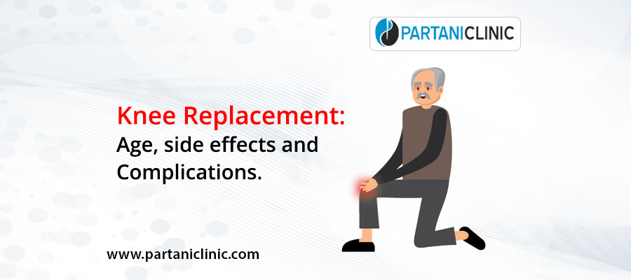 Knee Replacement: Age, side effects and Complications.