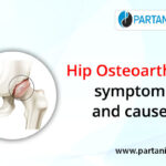 Hip osteoarthritis: symptoms and causes