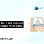 Recovery after knee arthroscopic surgery