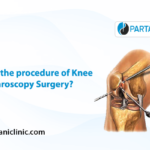 procedure of knee arthroscopy surgery
