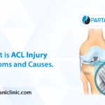 What is ACL Injury